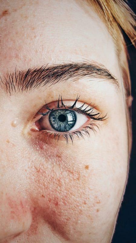 Prevenir y tratar las manchas de la piel